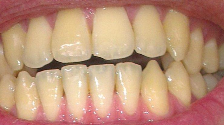 5 Cách làm răng hết vàng hiệu quả và nhanh chóng